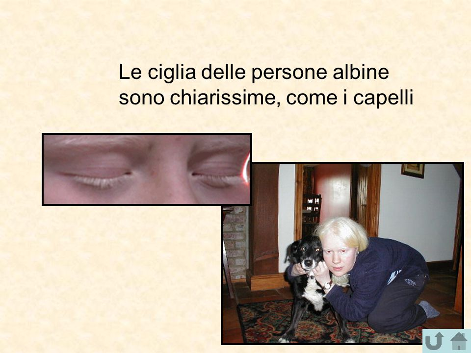 Gli occhi delle persone albine NON sono rossi ma, se illuminati opportunamente di lato, dato che l'iride è quasi trasparente e poco pigmentata, mostrano i capillari sanguigni al di sotto, e appaiono rossi per il colore del sangue che vi scorre