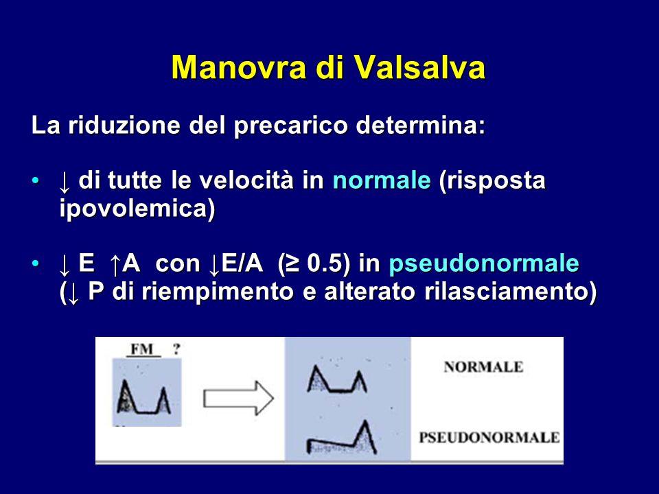 Manovra di Valsalva La riduzione del precarico determina: ↓ di tutte le velocità in normale (risposta ↓ di tutte le velocità in normale (risposta ipov