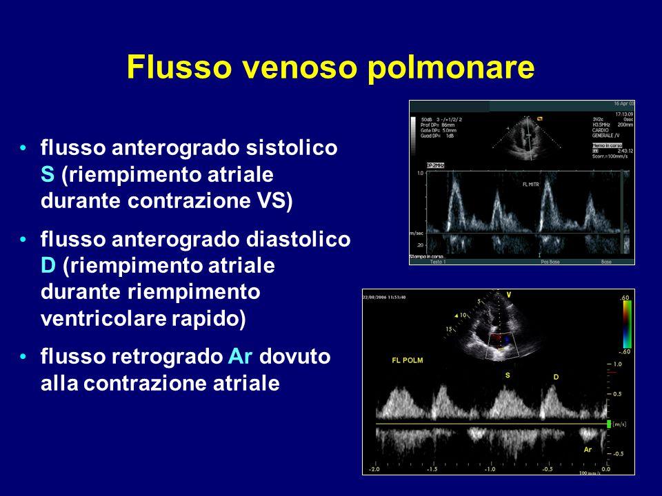 flusso anterogrado sistolico S (riempimento atriale durante contrazione VS) flusso anterogrado diastolico D (riempimento atriale durante riempimento v