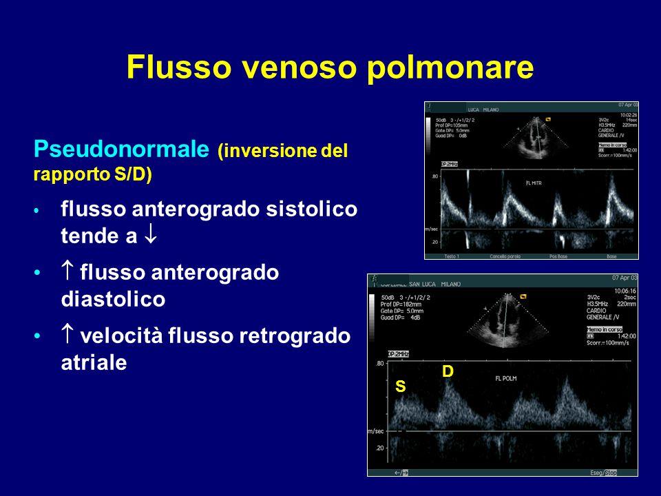 Pseudonormale (inversione del rapporto S/D) flusso anterogrado sistolico tende a   flusso anterogrado diastolico  velocità flusso retrogrado atrial