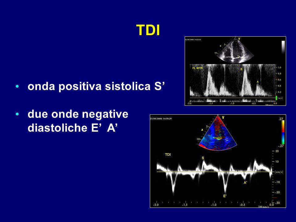 onda positiva sistolica S' due onde negative diastoliche E' A' ' TDI