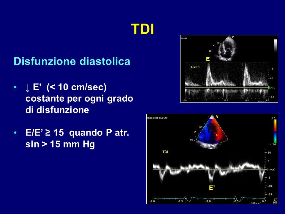 E' E Disfunzione diastolica ↓ E' (< 10 cm/sec) costante per ogni grado di disfunzione E/E' ≥ 15 quando P atr. sin > 15 mm Hg TDI