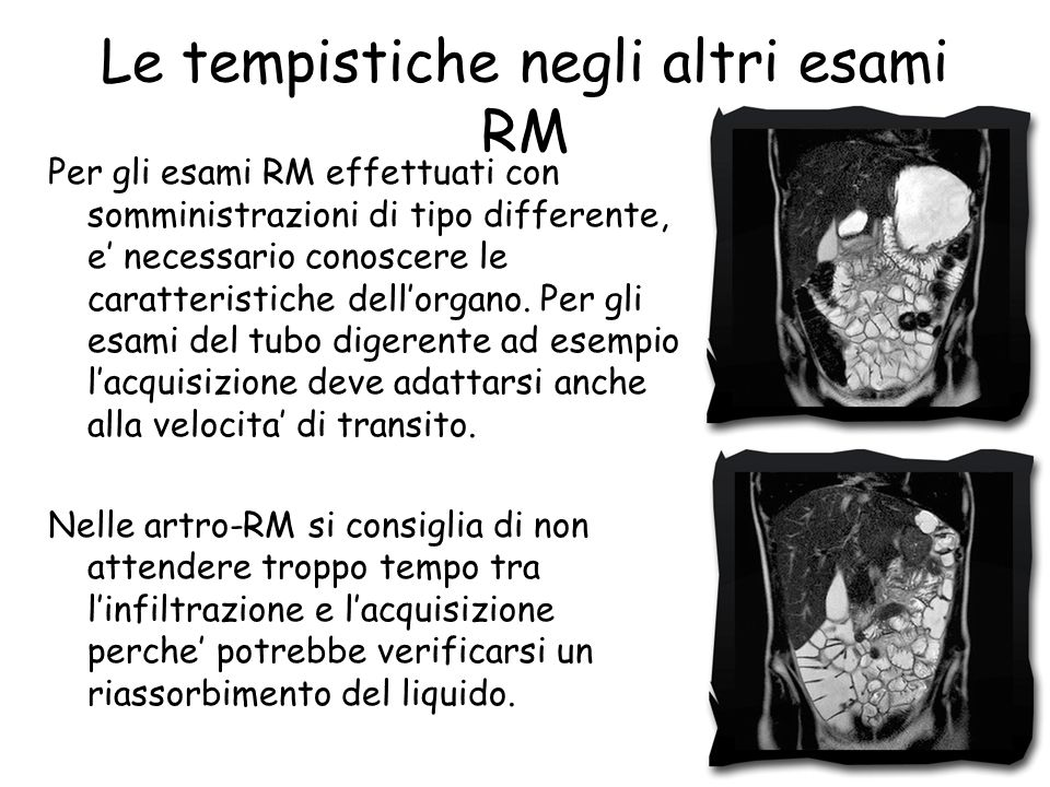 Le tempistiche negli altri esami RM Per gli esami RM effettuati con somministrazioni di tipo differente, e' necessario conoscere le caratteristiche dell'organo.
