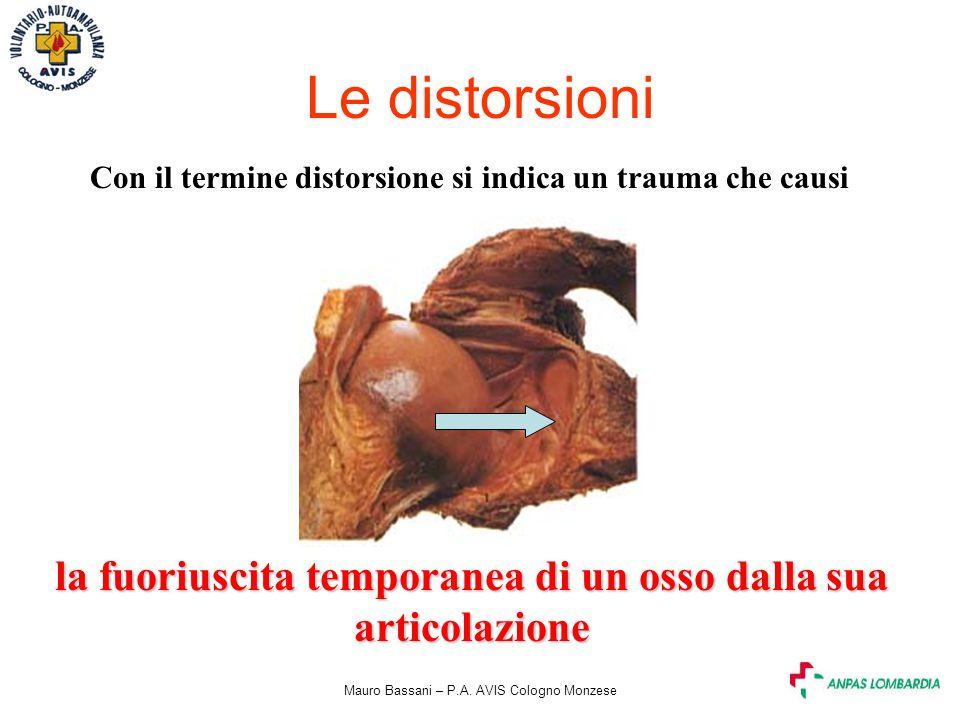 Mauro Bassani – P.A. AVIS Cologno Monzese Le distorsioni Con il termine distorsione si indica un trauma che causi la fuoriuscita temporanea di un osso