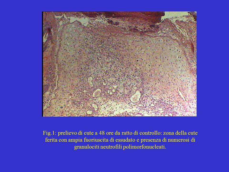 Fig.1: prelievo di cute a 48 ore da ratto di controllo: zona della cute ferita con ampia fuoriuscita di essudato e presenza di numerosi di granulociti neutrofili polimorfonucleati.