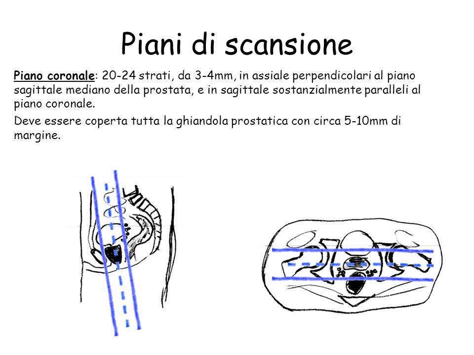 Piani di scansione Piano coronale: 20-24 strati, da 3-4mm, in assiale perpendicolari al piano sagittale mediano della prostata, e in sagittale sostanzialmente paralleli al piano coronale.