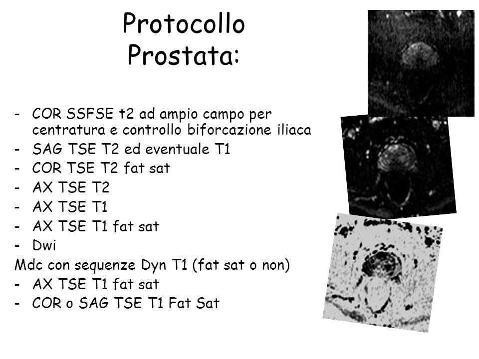 Protocollo Prostata: -COR SSFSE t2 ad ampio campo per centratura e controllo biforcazione iliaca -SAG TSE T2 ed eventuale T1 -COR TSE T2 fat sat -AX TSE T2 -AX TSE T1 -AX TSE T1 fat sat -Dwi Mdc con sequenze Dyn T1 (fat sat o non) -AX TSE T1 fat sat -COR o SAG TSE T1 Fat Sat