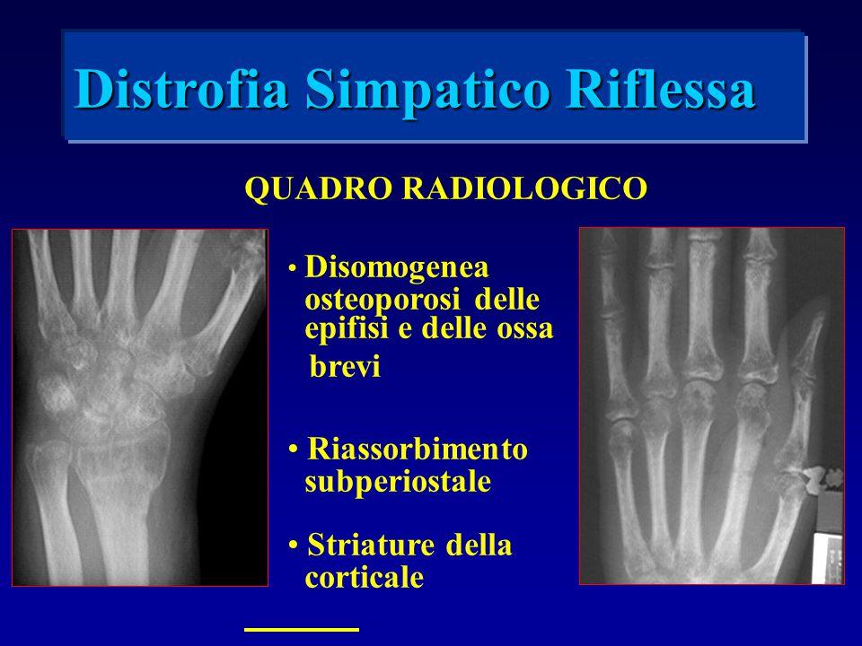 QUADRO RADIOLOGICO Disomogenea osteoporosi delle epifisi e delle ossa brevi Riassorbimento subperiostale Striature della corticale Distrofia Simpatico