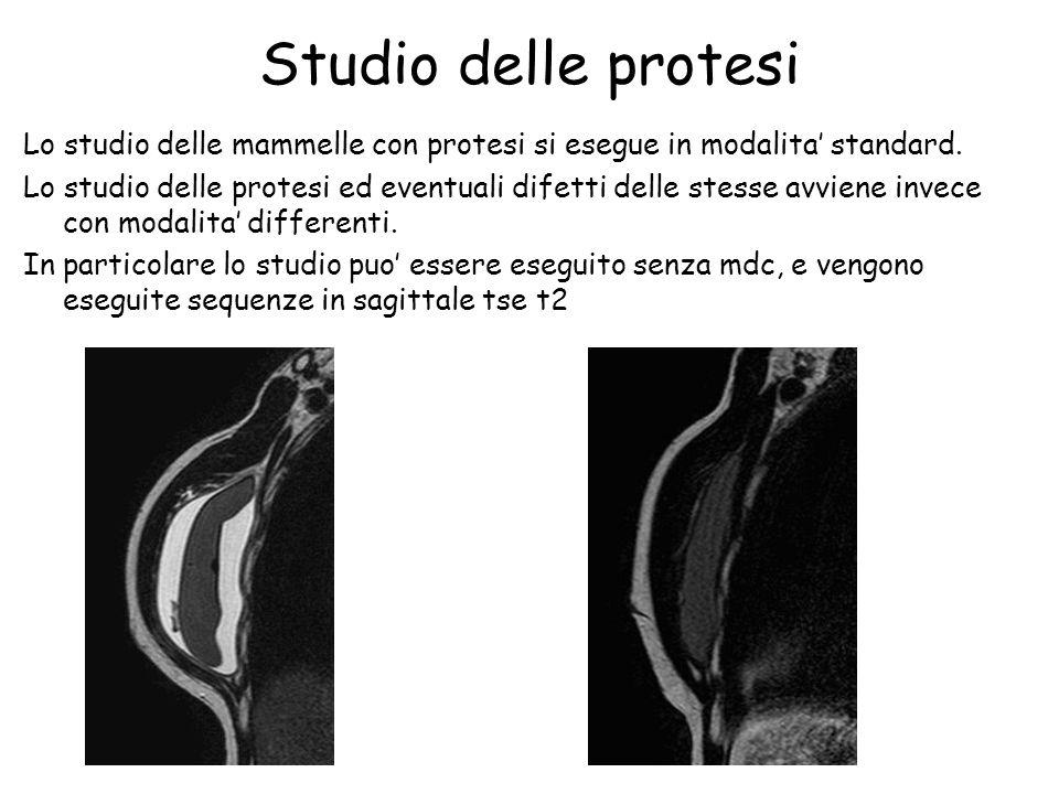 Studio delle protesi Lo studio delle mammelle con protesi si esegue in modalita' standard. Lo studio delle protesi ed eventuali difetti delle stesse a