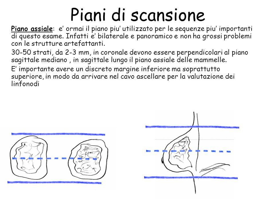 Piani di scansione Piano assiale: e' ormai il piano piu' utilizzato per le sequenze piu' importanti di questo esame.