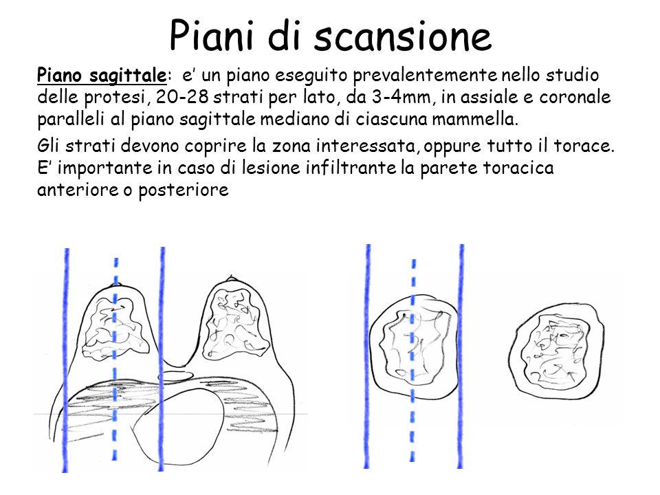 Piani di scansione Piano sagittale: e' un piano eseguito prevalentemente nello studio delle protesi, 20-28 strati per lato, da 3-4mm, in assiale e coronale paralleli al piano sagittale mediano di ciascuna mammella.