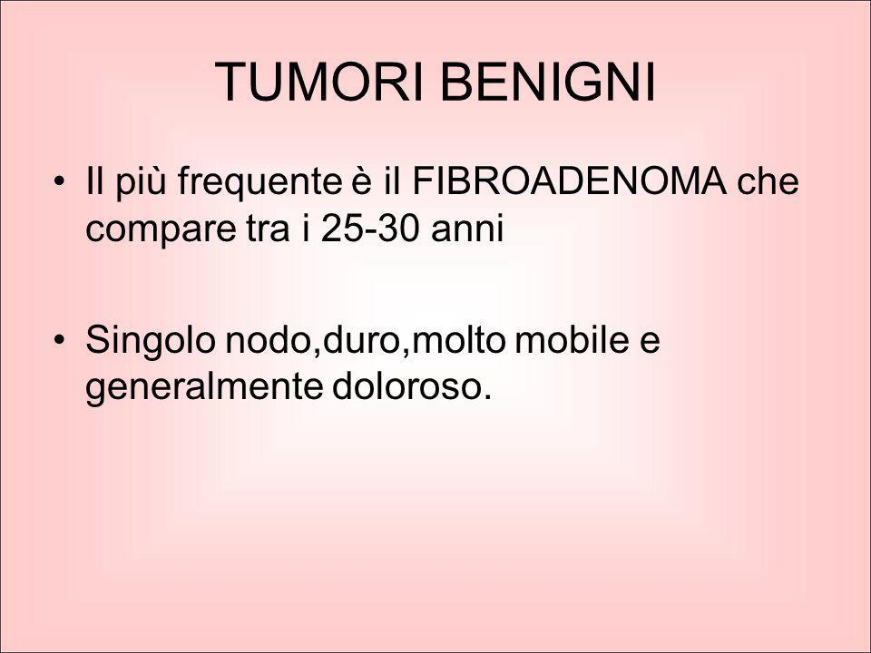 TUMORI BENIGNI Il più frequente è il FIBROADENOMA che compare tra i 25-30 anni Singolo nodo,duro,molto mobile e generalmente doloroso.