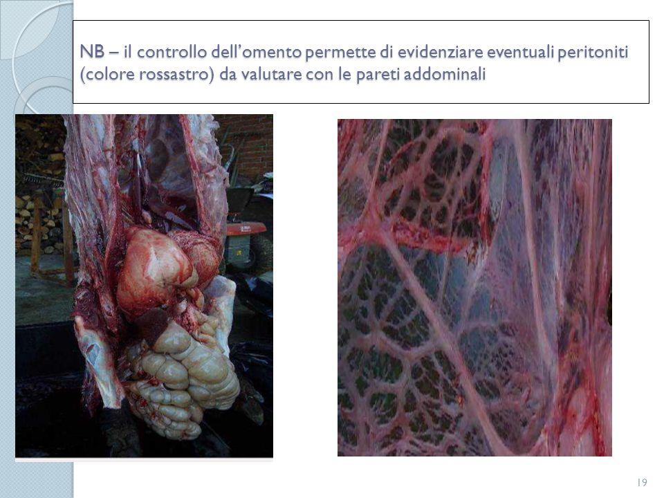 NB – il controllo dell'omento permette di evidenziare eventuali peritoniti (colore rossastro) da valutare con le pareti addominali 19