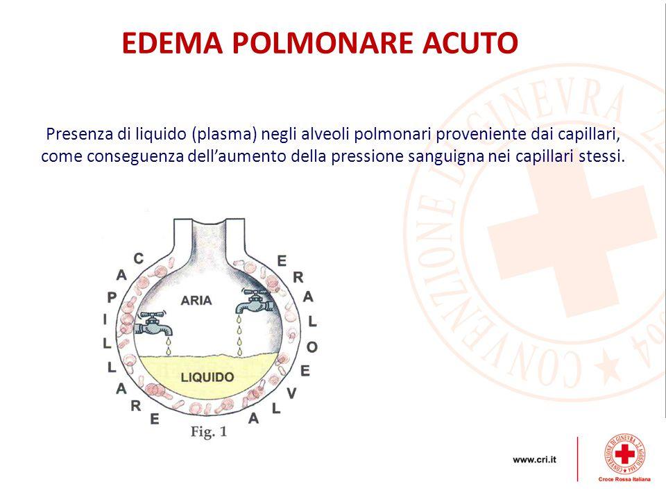 Presenza di liquido (plasma) negli alveoli polmonari proveniente dai capillari, come conseguenza dell'aumento della pressione sanguigna nei capillari
