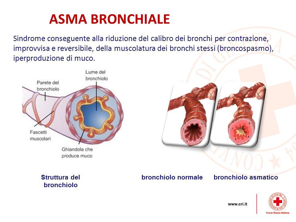 Sindrome conseguente alla riduzione del calibro dei bronchi per contrazione, improvvisa e reversibile, della muscolatura dei bronchi stessi (broncospa