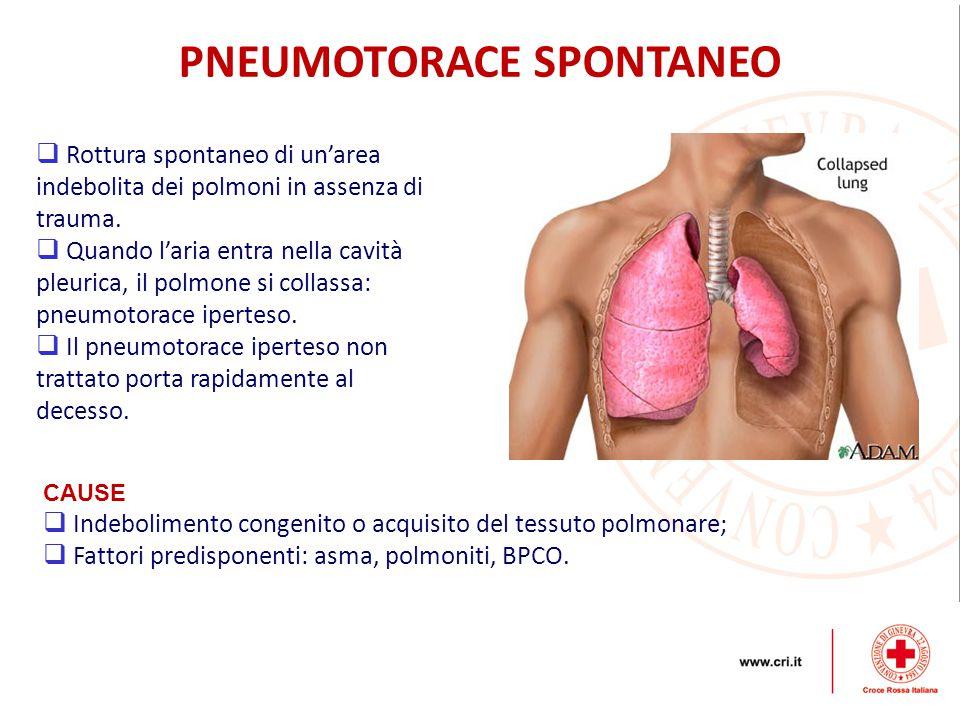 PNEUMOTORACE SPONTANEO  Rottura spontaneo di un'area indebolita dei polmoni in assenza di trauma.  Quando l'aria entra nella cavità pleurica, il pol