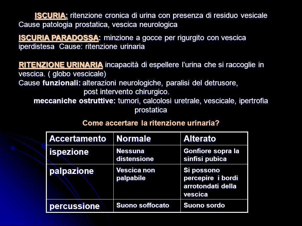 ISCURIA: ritenzione cronica di urina con presenza di residuo vesicale Cause patologia prostatica, vescica neurologica ISCURIA PARADOSSA: minzione a go