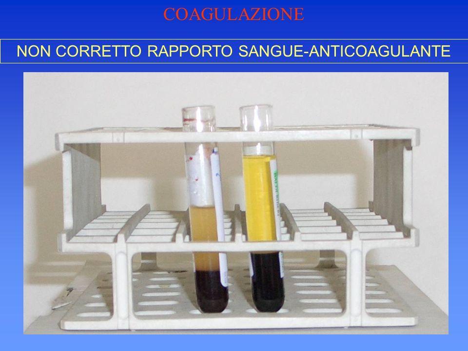 NON CORRETTO RAPPORTO SANGUE-ANTICOAGULANTE COAGULAZIONE
