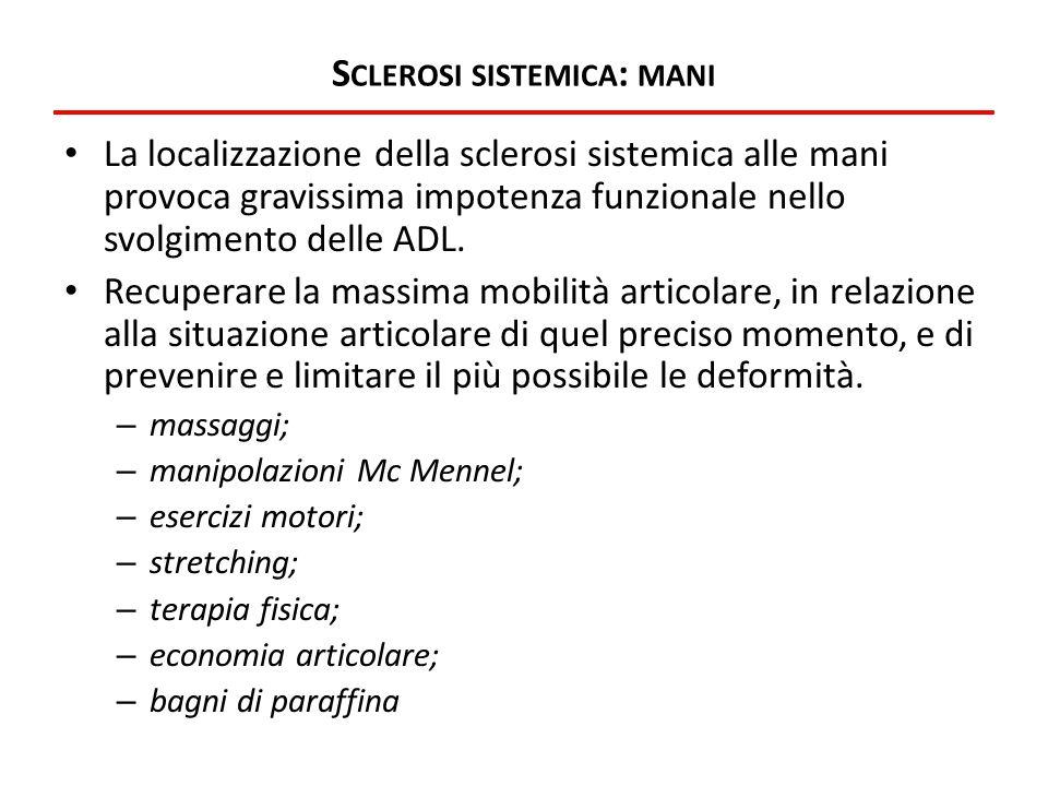 S CLEROSI SISTEMICA : MANI La localizzazione della sclerosi sistemica alle mani provoca gravissima impotenza funzionale nello svolgimento delle ADL. R