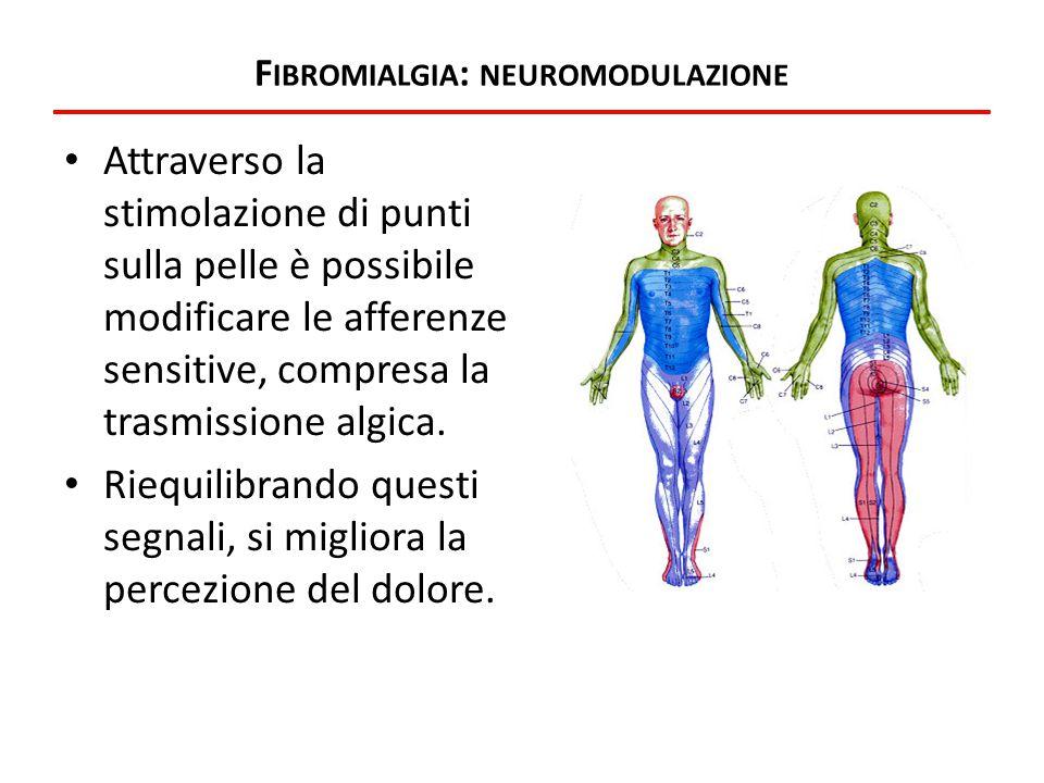 F IBROMIALGIA : NEUROMODULAZIONE Attraverso la stimolazione di punti sulla pelle è possibile modificare le afferenze sensitive, compresa la trasmissio