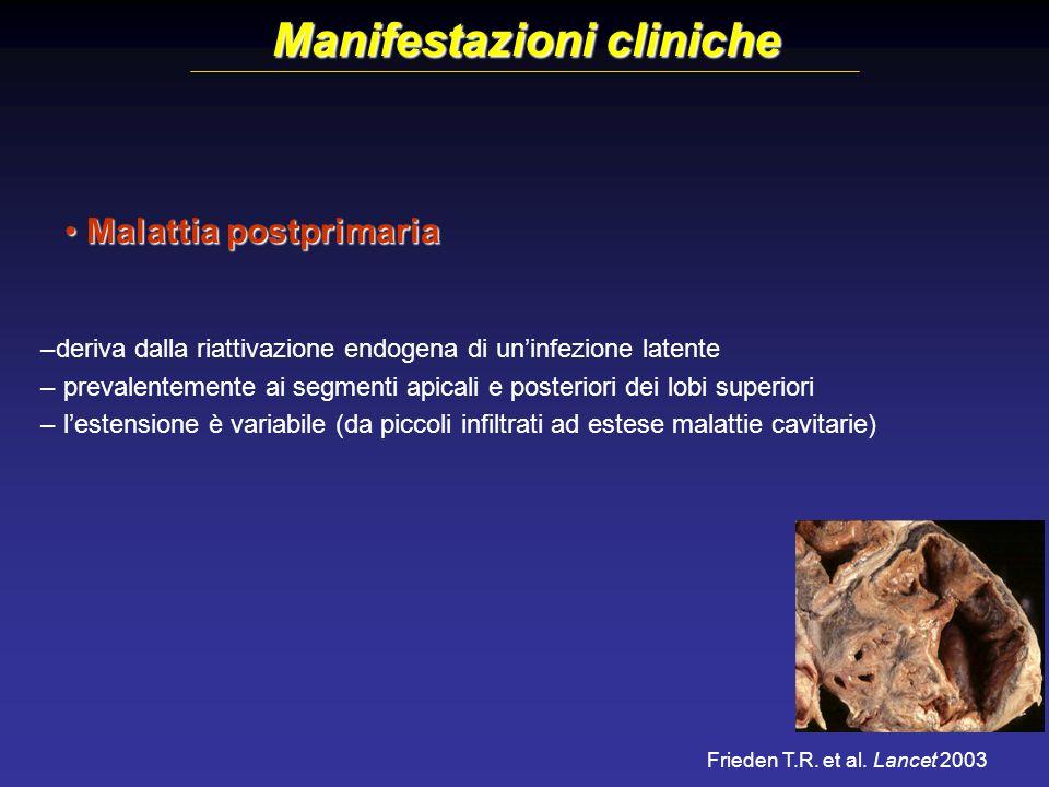 Manifestazioni cliniche Malattia postprimaria Malattia postprimaria –deriva dalla riattivazione endogena di un'infezione latente – prevalentemente ai