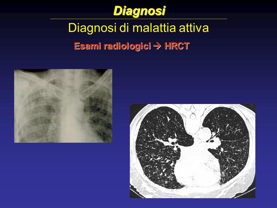 Diagnosi di malattia attiva Diagnosi Esami radiologici  HRCT