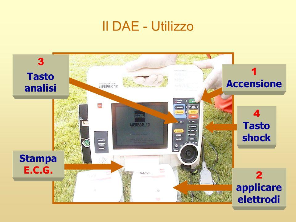 Il DAE - Utilizzo 1 Accensione 2 applicare elettrodi 4 Tasto shock 3 Tasto analisi Stampa E.C.G.
