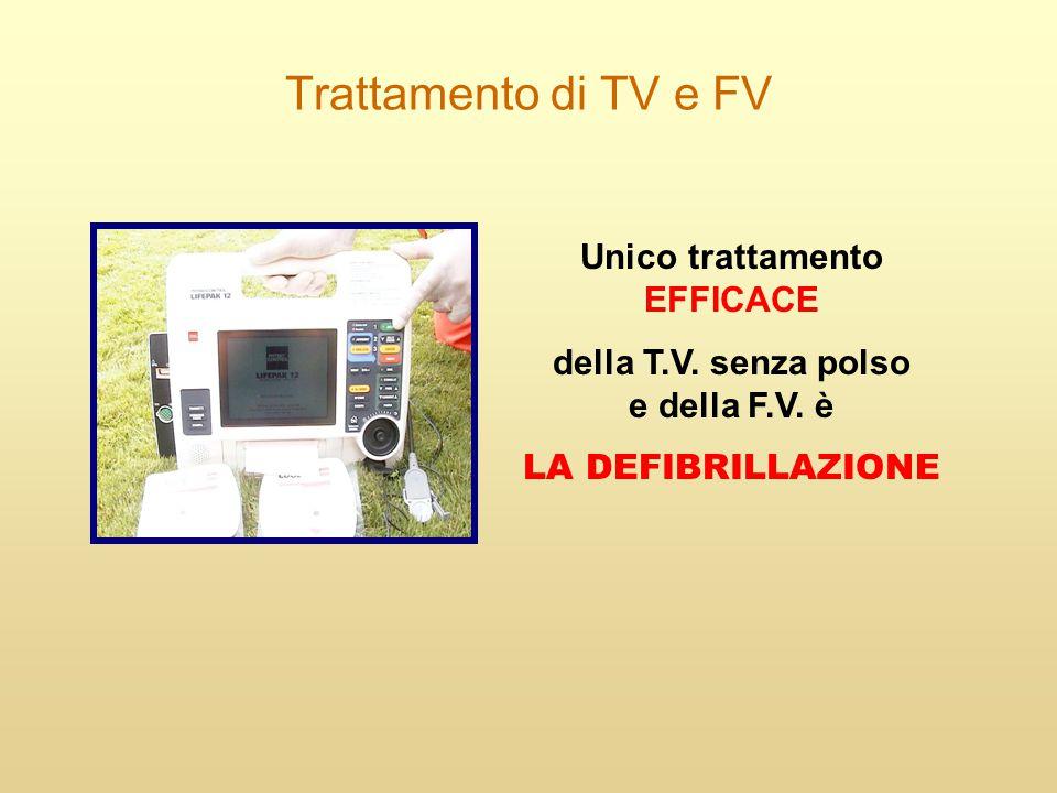 Trattamento di TV e FV Unico trattamento EFFICACE della T.V. senza polso e della F.V. è LA DEFIBRILLAZIONE