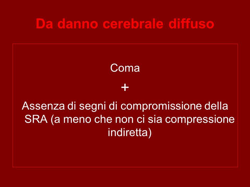 Da danno cerebrale diffuso Coma + Assenza di segni di compromissione della SRA (a meno che non ci sia compressione indiretta)