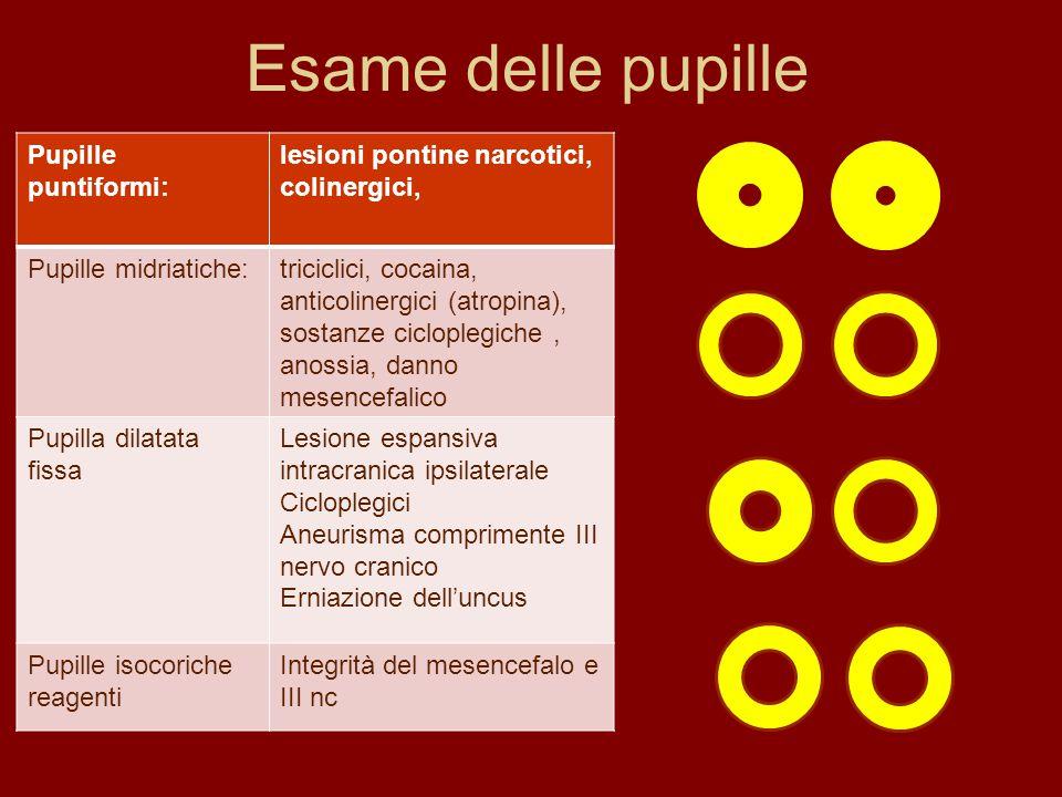 Esame delle pupille Pupille puntiformi: lesioni pontine narcotici, colinergici, Pupille midriatiche:triciclici, cocaina, anticolinergici (atropina), s