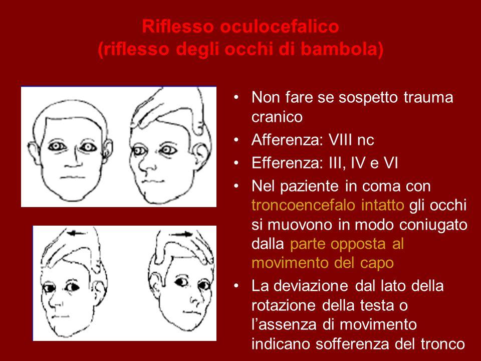 Riflesso oculocefalico (riflesso degli occhi di bambola) Non fare se sospetto trauma cranico Afferenza: VIII nc Efferenza: III, IV e VI Nel paziente i