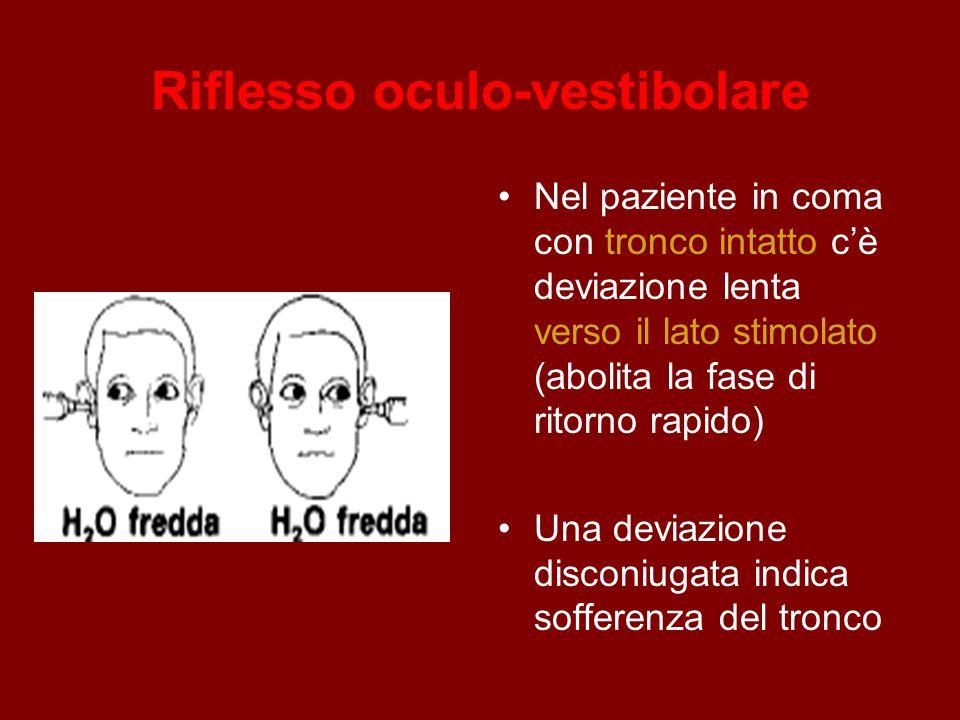 Riflesso oculo-vestibolare Nel paziente in coma con tronco intatto c'è deviazione lenta verso il lato stimolato (abolita la fase di ritorno rapido) Una deviazione disconiugata indica sofferenza del tronco