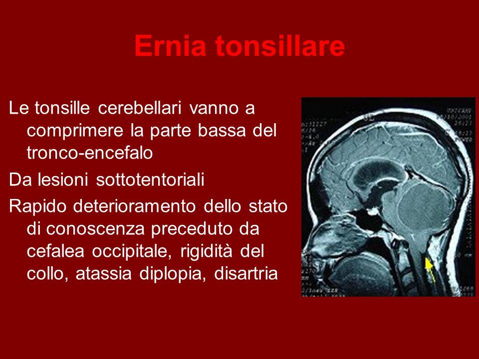 Ernia tonsillare Le tonsille cerebellari vanno a comprimere la parte bassa del tronco-encefalo Da lesioni sottotentoriali Rapido deterioramento dello stato di conoscenza preceduto da cefalea occipitale, rigidità del collo, atassia diplopia, disartria