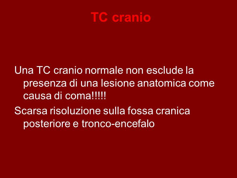 TC cranio Una TC cranio normale non esclude la presenza di una lesione anatomica come causa di coma!!!!.