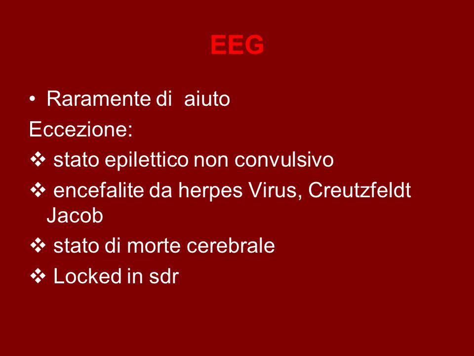 EEG Raramente di aiuto Eccezione:  stato epilettico non convulsivo  encefalite da herpes Virus, Creutzfeldt Jacob  stato di morte cerebrale  Locked in sdr