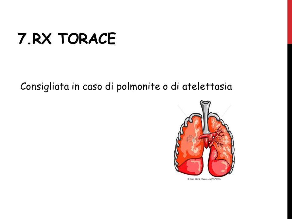 7.RX TORACE Consigliata in caso di polmonite o di atelettasia