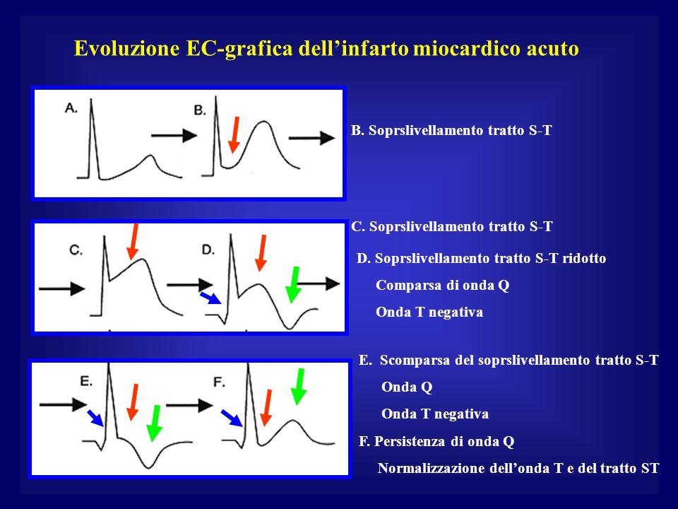 Evoluzione EC-grafica dell'infarto miocardico acuto B. Soprslivellamento tratto S-T C. Soprslivellamento tratto S-T D. Soprslivellamento tratto S-T ri