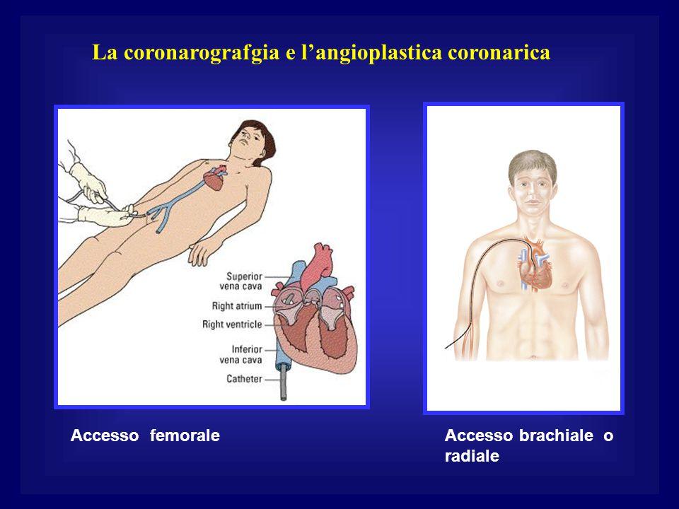 La coronarografgia e l'angioplastica coronarica Accesso femoraleAccesso brachiale o radiale