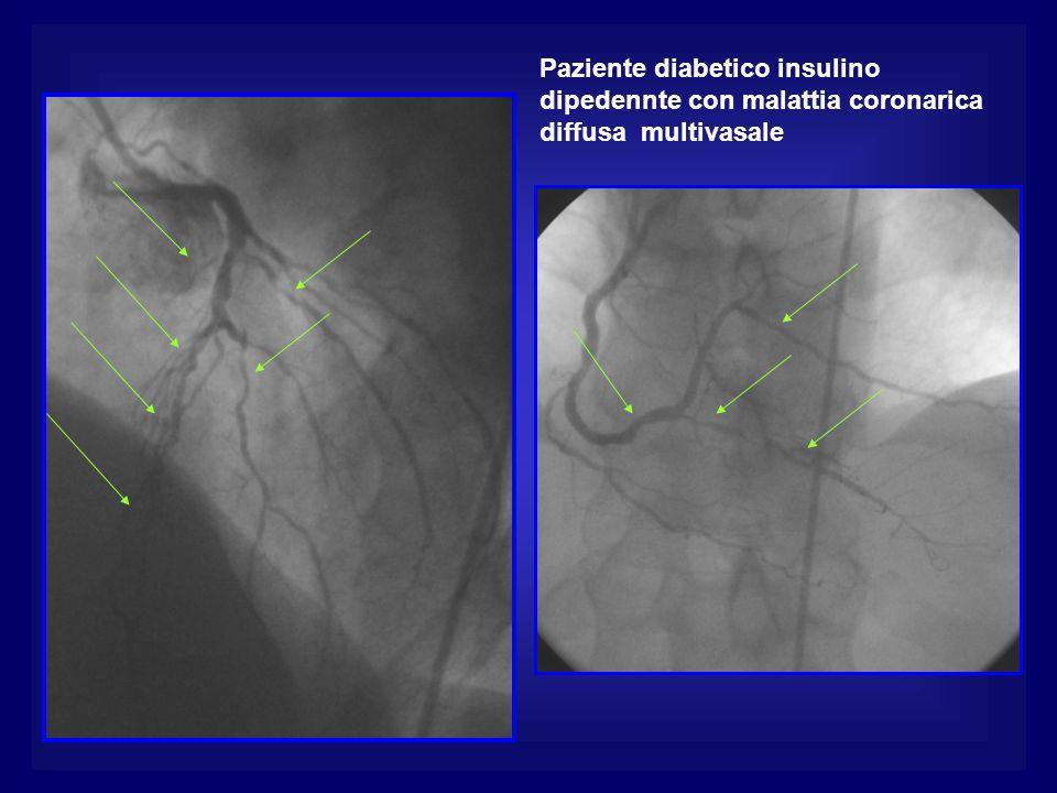 Paziente diabetico insulino dipedennte con malattia coronarica diffusa multivasale