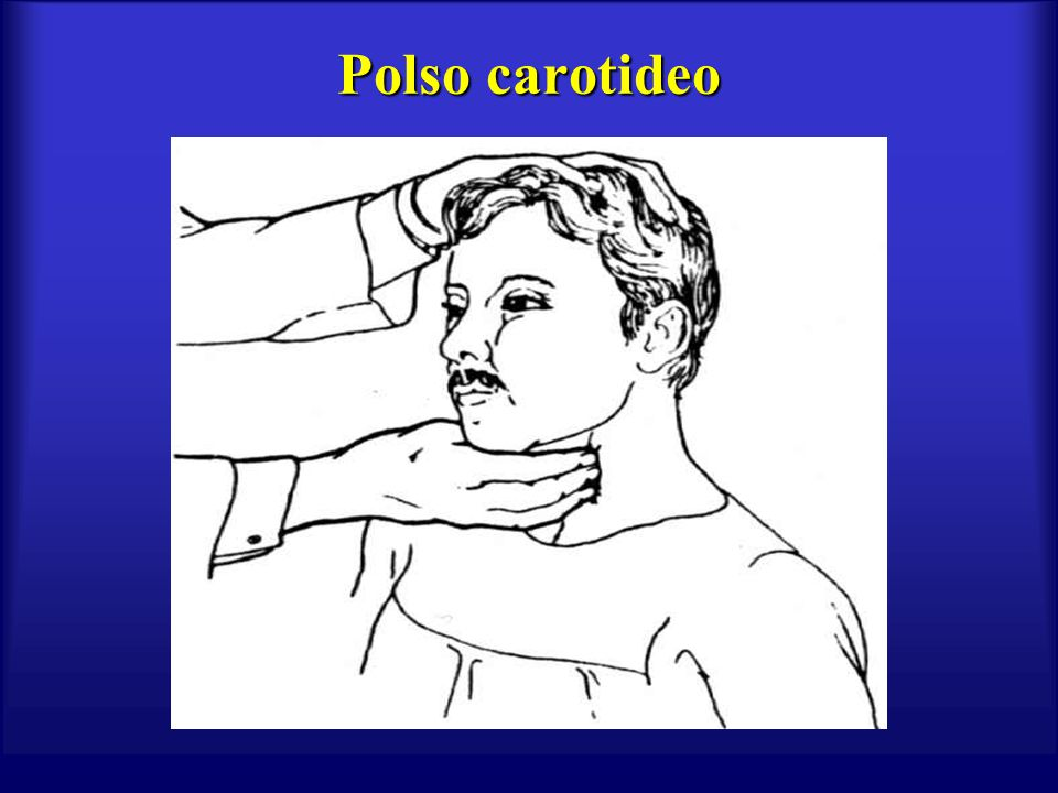 Polso carotideo