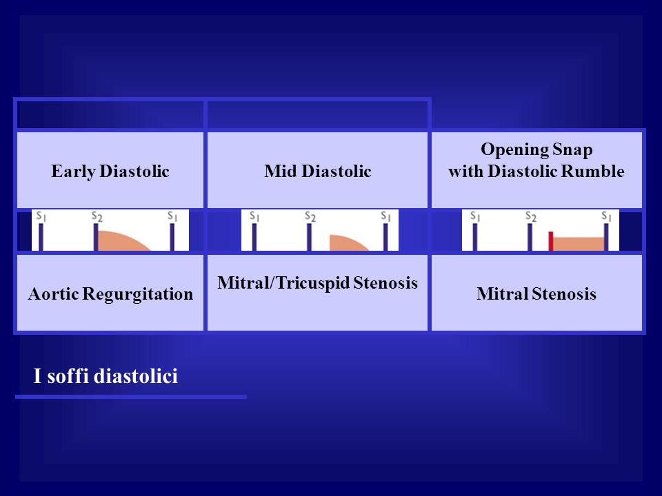 Early DiastolicMid Diastolic Opening Snap with Diastolic Rumble Aortic Regurgitation Mitral/Tricuspid Stenosis Mitral Stenosis I soffi diastolici