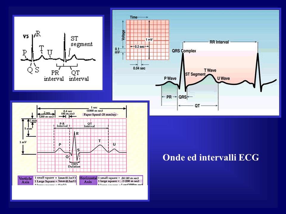 Onde ed intervalli ECG