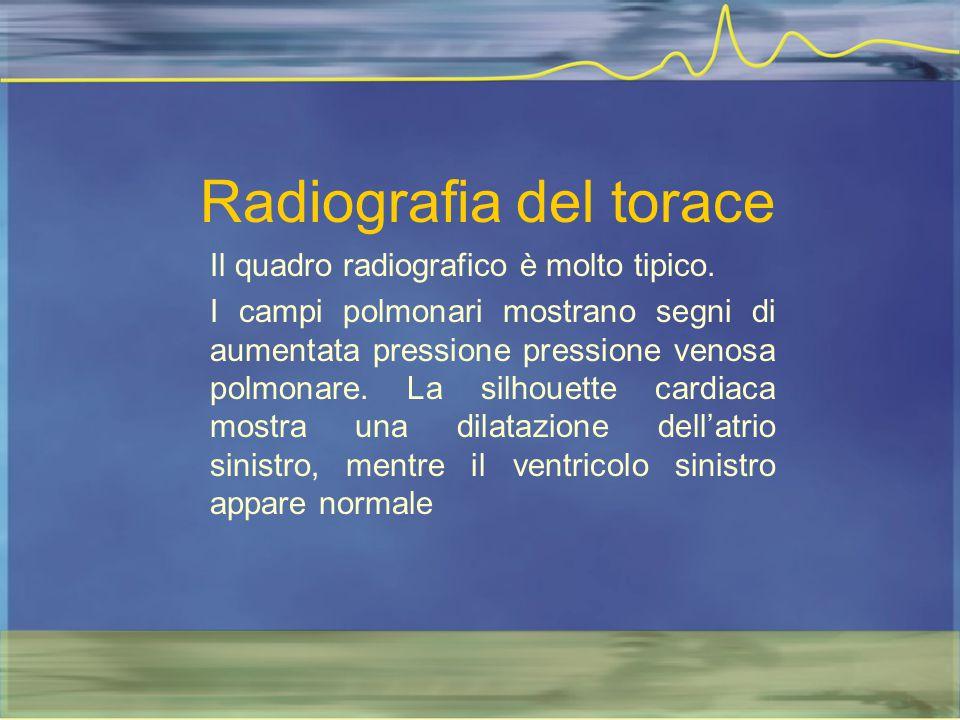 Radiografia del torace Il quadro radiografico è molto tipico. I campi polmonari mostrano segni di aumentata pressione pressione venosa polmonare. La s