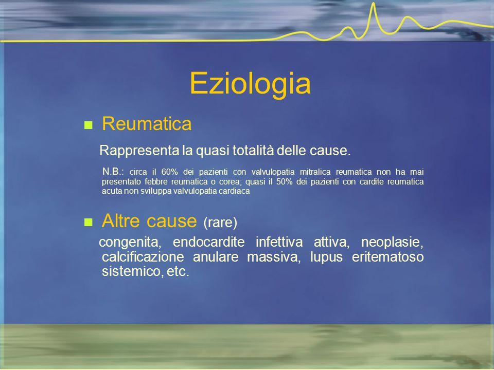 Eziologia Reumatica Rappresenta la quasi totalità delle cause. N.B.: circa il 60% dei pazienti con valvulopatia mitralica reumatica non ha mai present