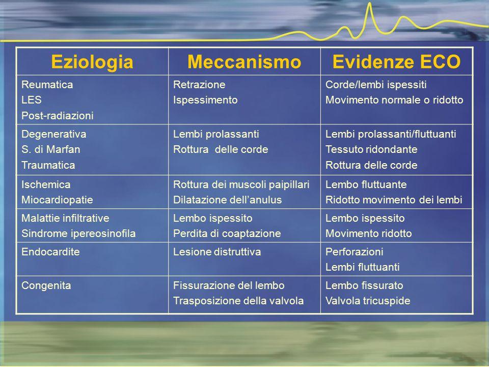 EziologiaMeccanismoEvidenze ECO Reumatica LES Post-radiazioni Retrazione Ispessimento Corde/lembi ispessiti Movimento normale o ridotto Degenerativa S