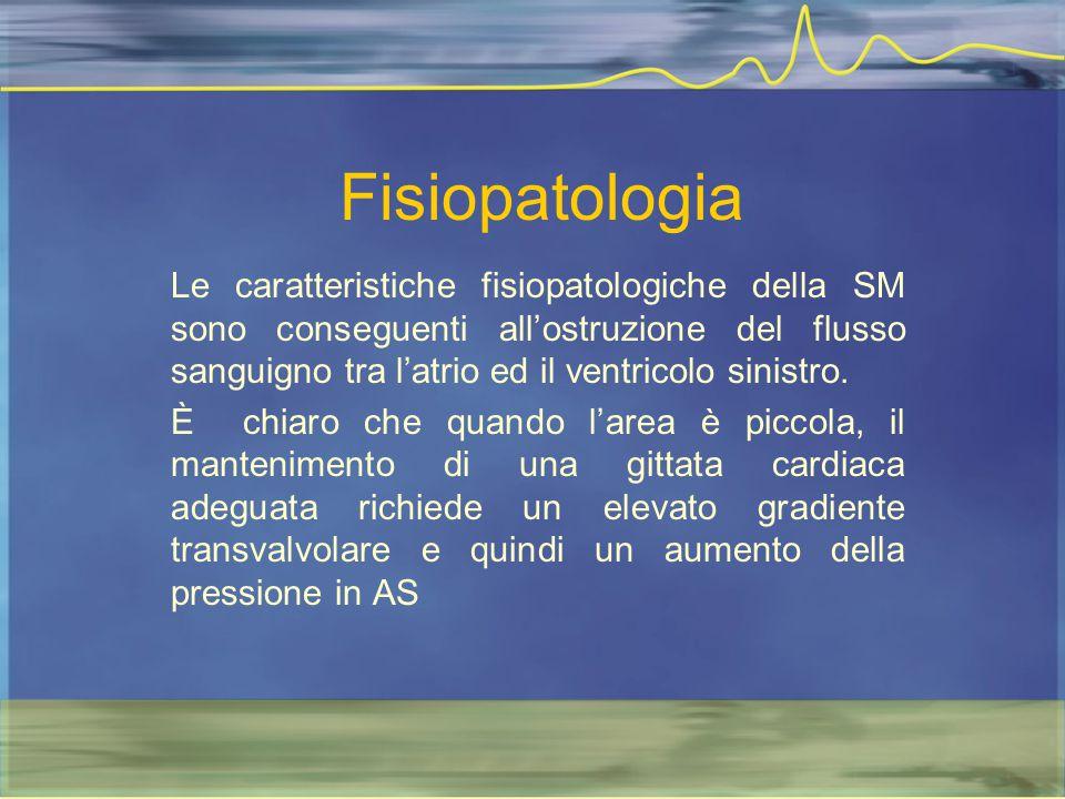 Fisiopatologia Le caratteristiche fisiopatologiche della SM sono conseguenti all'ostruzione del flusso sanguigno tra l'atrio ed il ventricolo sinistro