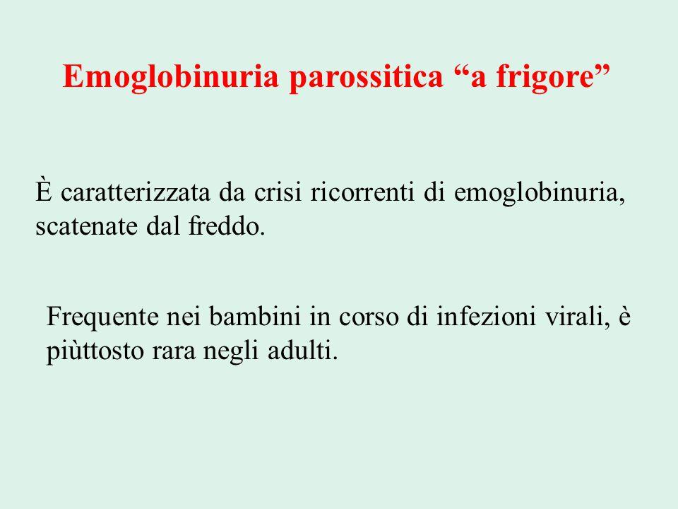 """Emoglobinuria parossitica """"a frigore"""" È caratterizzata da crisi ricorrenti di emoglobinuria, scatenate dal freddo. Frequente nei bambini in corso di i"""