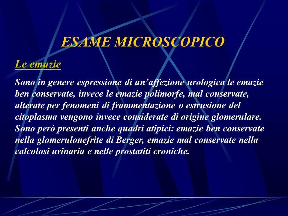 ESAME MICROSCOPICO Le emazie Sono in genere espressione di un'affezione urologica le emazie ben conservate, invece le emazie polimorfe, mal conservate