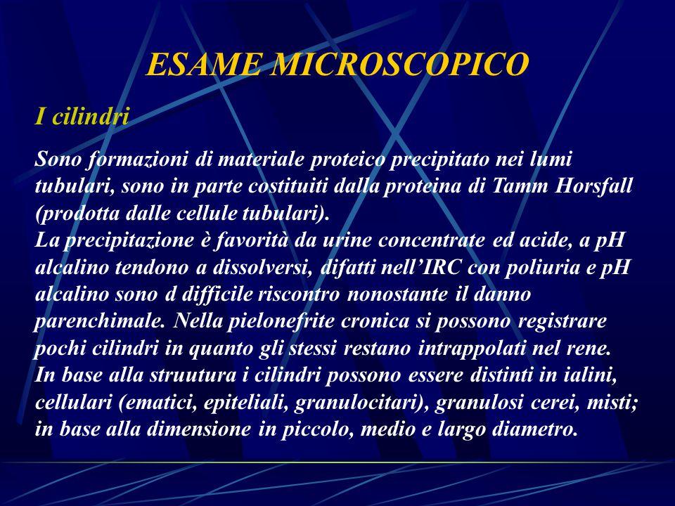 ESAME MICROSCOPICO I cilindri Sono formazioni di materiale proteico precipitato nei lumi tubulari, sono in parte costituiti dalla proteina di Tamm Hor
