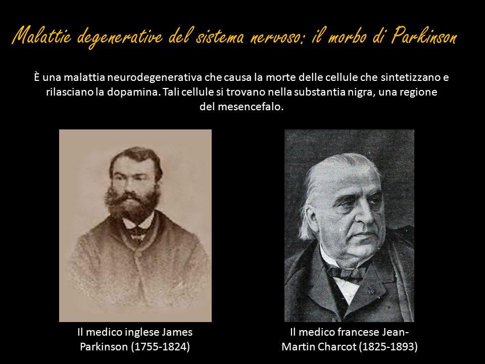 Malattie degenerative del sistema nervoso: il morbo di Parkinson È una malattia neurodegenerativa che causa la morte delle cellule che sintetizzano e